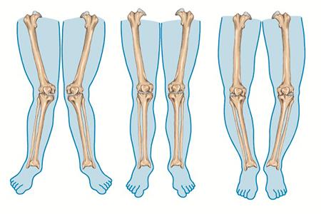 foot-massage-nguyen-son-137-Massage chân giúp khắc phục chân vòng kiềng